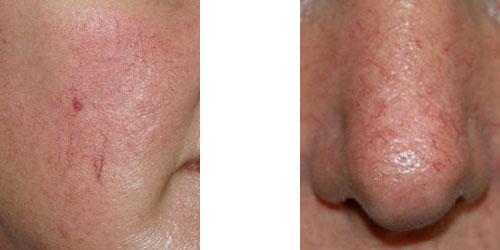 New Facial veins and broken capillaries: Overview of ...